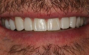Etobicoke Dentist - West Metro Dental After treatment