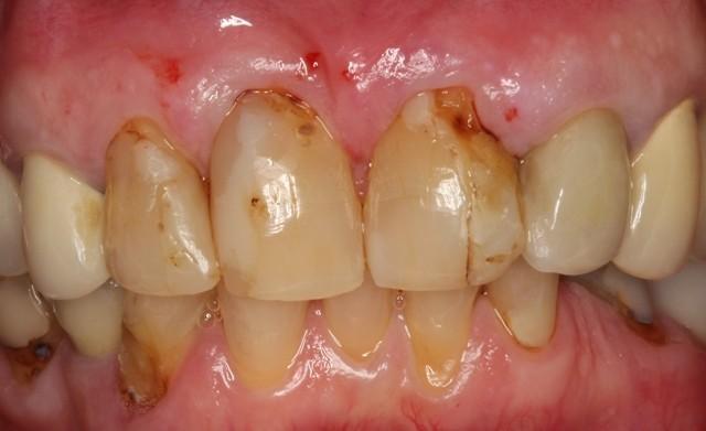 Etobicoke Dentist - West Metro Dental - Before Veneers Treatment