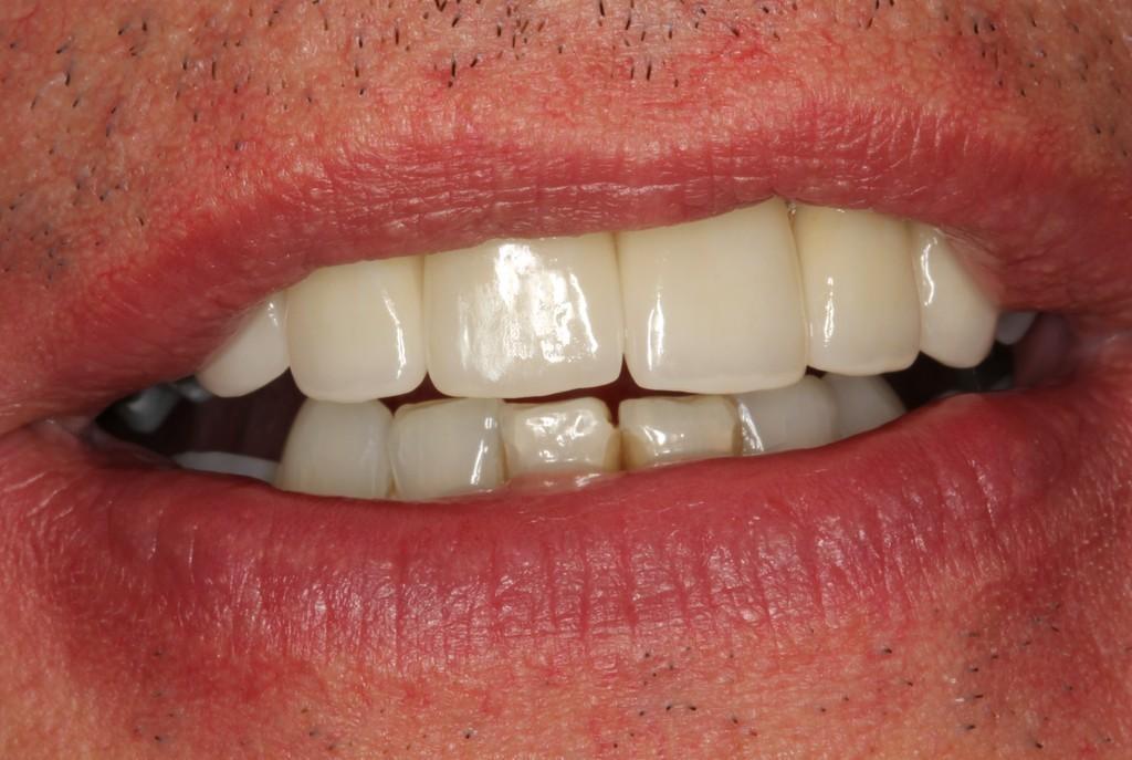 Etobicoke Dentist - West Metro Dental - After Veneers Treatment