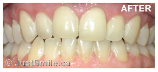 Etobicoke Dentist - West Metro Dental - Smile enhancement after