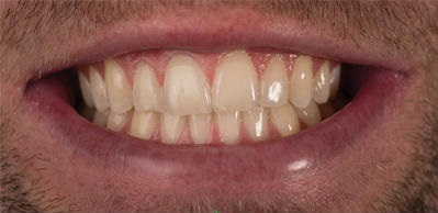 Etobicoke Dentist - West Metro Dental - Smile Enhancement
