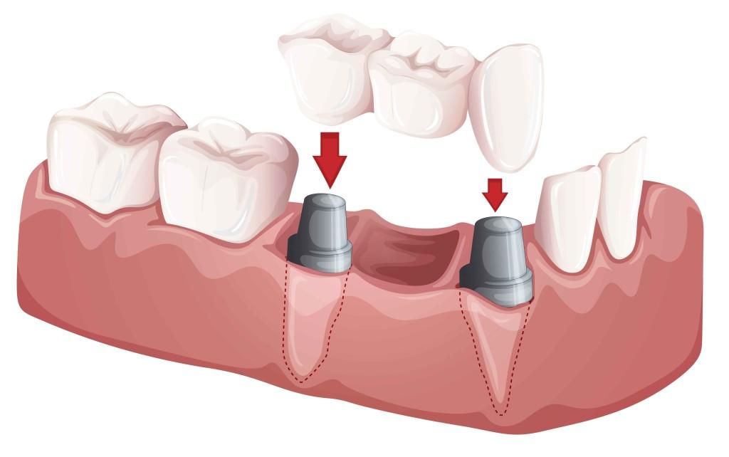 Etobicoke Dentist - West Metro Dental - Dental Bridges