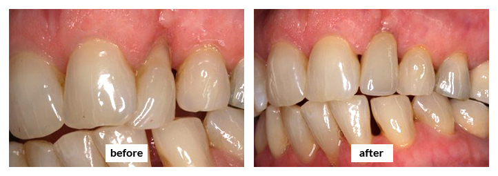 Etobicoke Dentist - West Metro Dental - Dental Implants Before and After