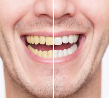 Etobicoke Dentist - West Metro Dental - Teeth Whitening