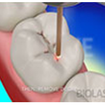 Etobicoke Dentist - West Metro Dental - Cavity or Dental Caries