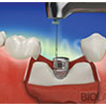 Etobicoke Dentist - West Metro Dental - Dental Implants
