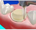 Etobicoke Dentist - West Metro Dental - Dental Implants