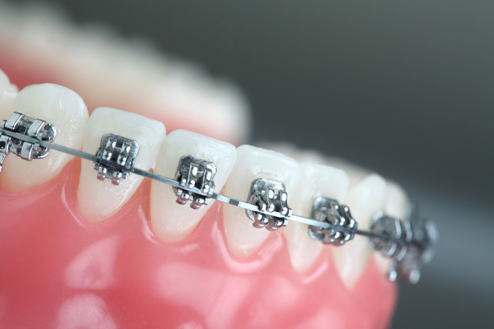 Etobicoke Dentist - West Metro Dental - Orthodontics