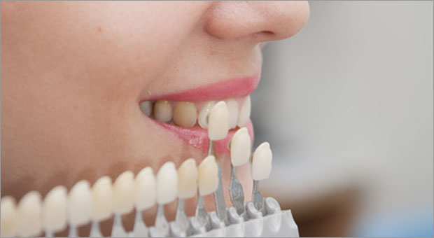 Etobicoke Dentist - West Metro Dental - Dental Veneers