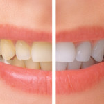 Etobicoke Dentist - West Metro Dental - Zoom whitening