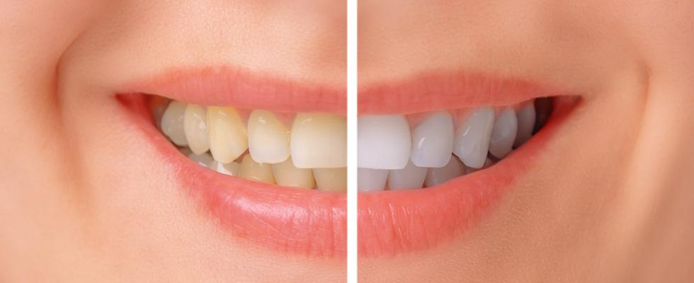 Etobicoke Dentist - West Metro Dental - Zoom whitening