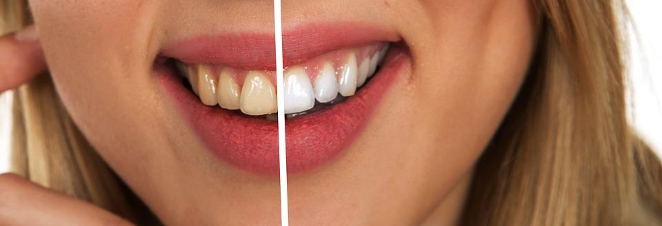 Etobicoke Dentist - West Metro Dental - Dental Cleaning
