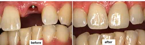 Dental Implants Gallery